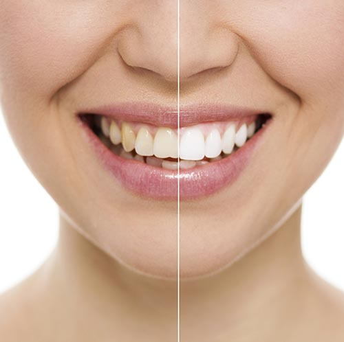 Whitening can brighten your smile!